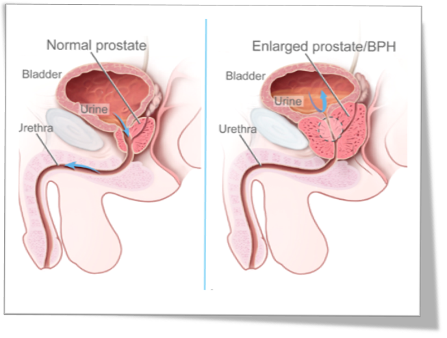 Does ejaculation enlarged prostate