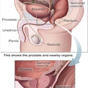 Symptoms Of Enlarged Prostate