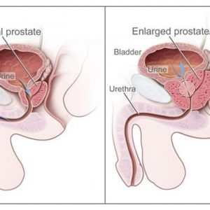 Prostate Volume